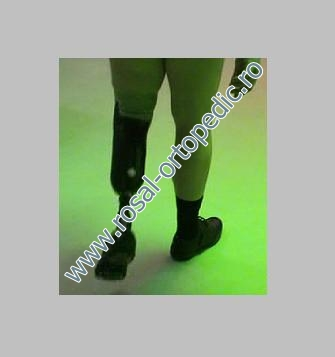 automatic valve for prothesis • the 1 way valve is designed onlyfor lower limb prothesis • as it reduces pulling effects sometimes observed with distal attachment systems, it is appropriate for patients expecting an excellent link between the socket and the stump.