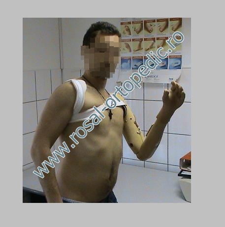 machanical arm/prothesis
