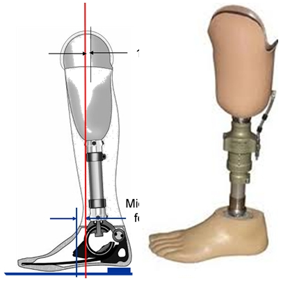 automatic valve for prothesis Request pdf on researchgate   leaflet free edge detection for the automatic analysis of prosthetic heart valve opening and closing motion patterns from high speed.