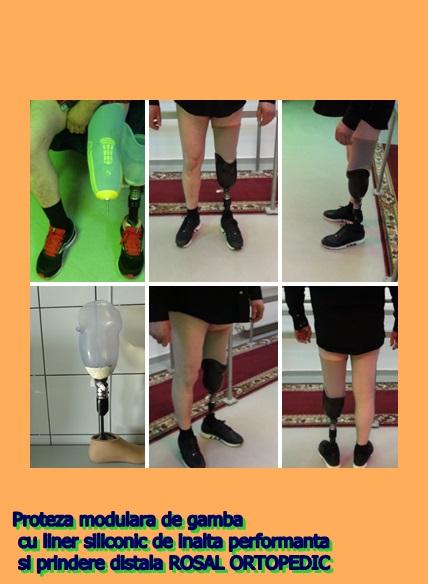 proteza de gamba modulara
